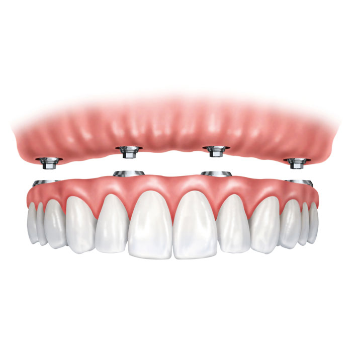 Dental Implant Dentures - Dental Services